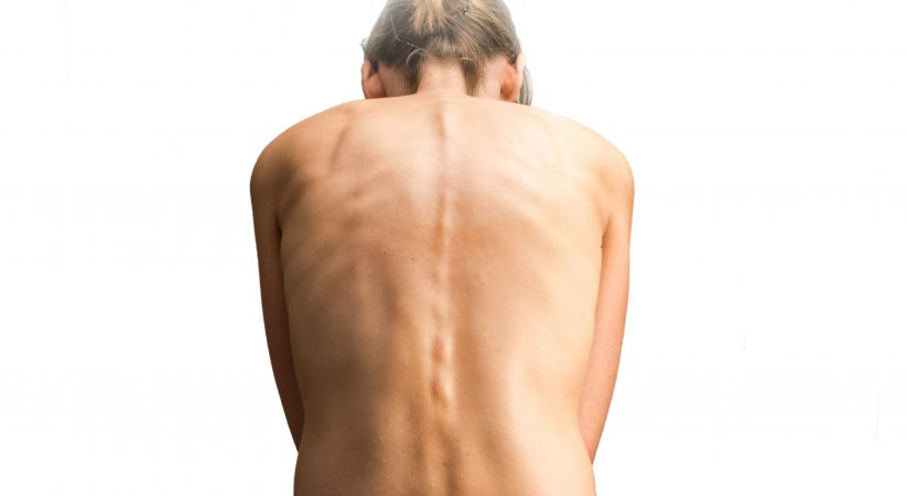 Effective Programs at BestScoliosisExercise.com