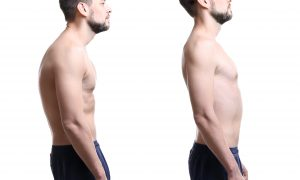 Best Exercise Tips Found In BestScoliosisExercise.com