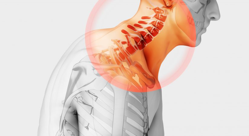 Best Scoliosis Exercises For The Neck